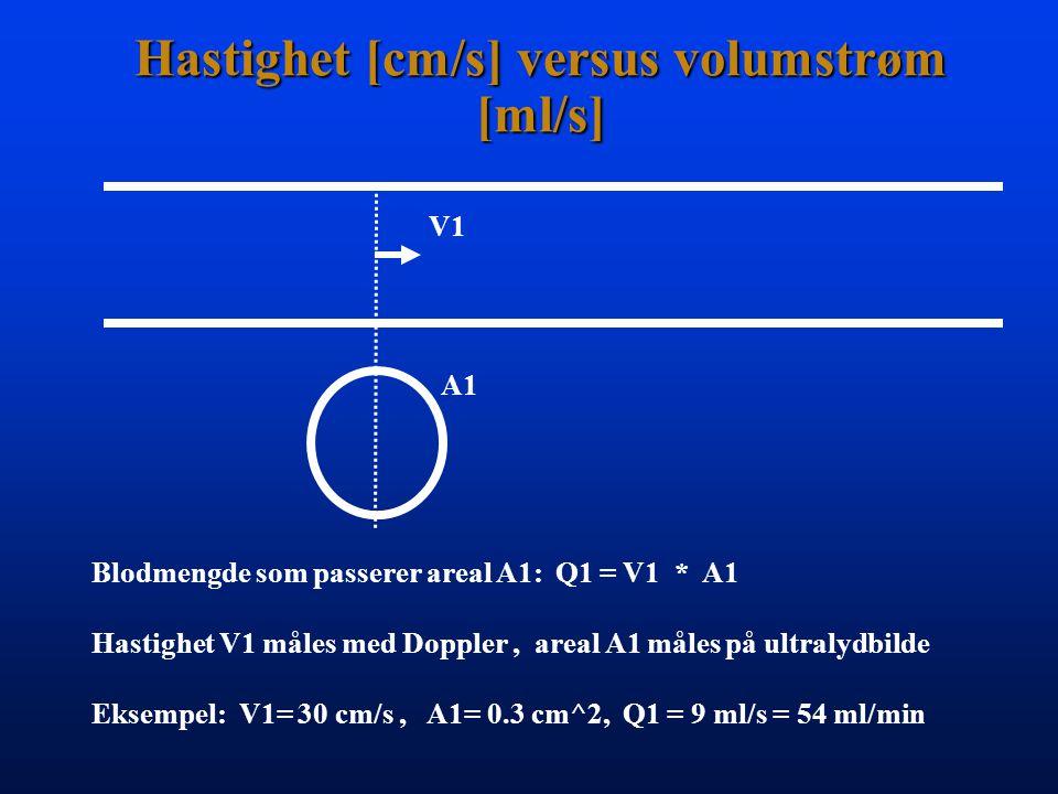 Hastighet [cm/s] versus volumstrøm [ml/s]